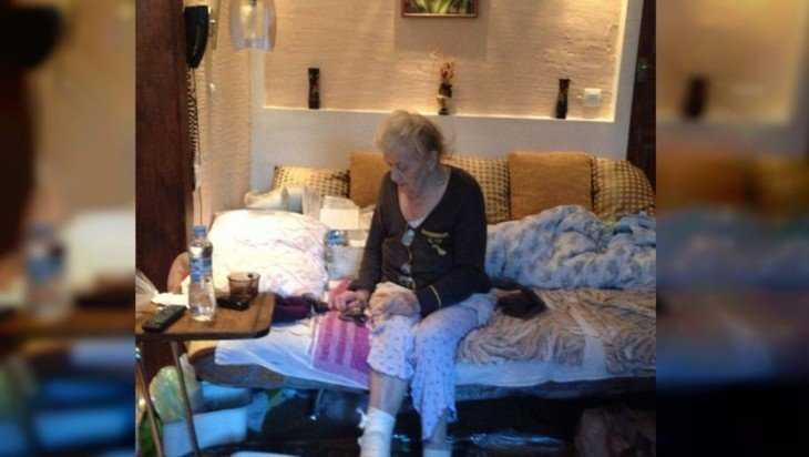 В РФ  медсотрудники  ошибочно ампутировали здоровую ногу бывшей узнице концлагеря
