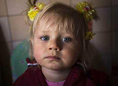 На лечение брянской девочки Насти Петровской собрали 2,5 миллиона