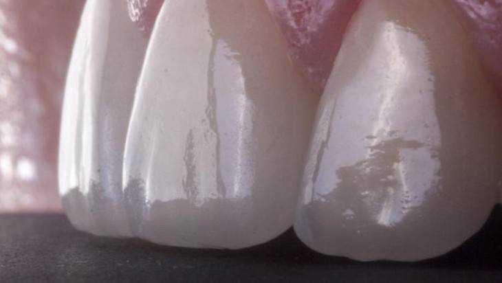 Для чего устанавливать виниры на зубы