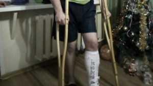 Житель Брянска под Новый год сломал ногу в магазине