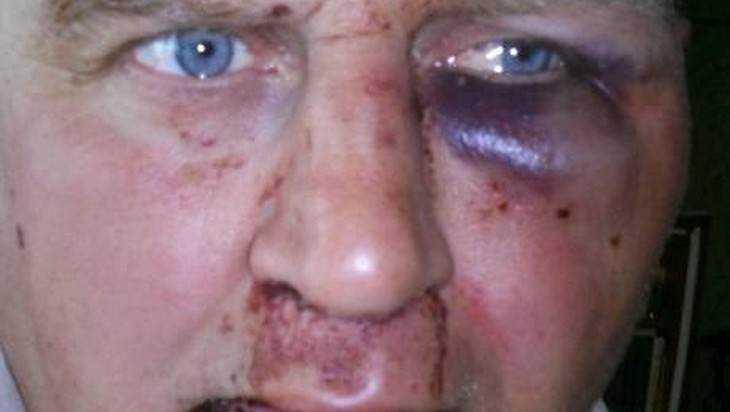 В Жуковке опять избили блогера Чесалина,откусившего палец обидчику