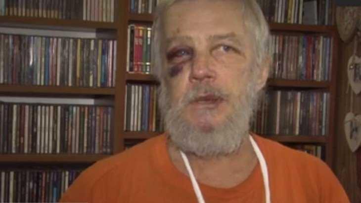 В Брянске мужчина из-за музыки переломал кости соседу