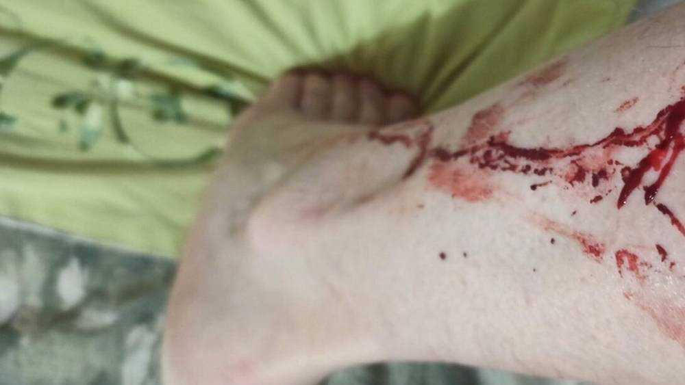 В Брянске возле кафе псы разорвали мужчине ногу