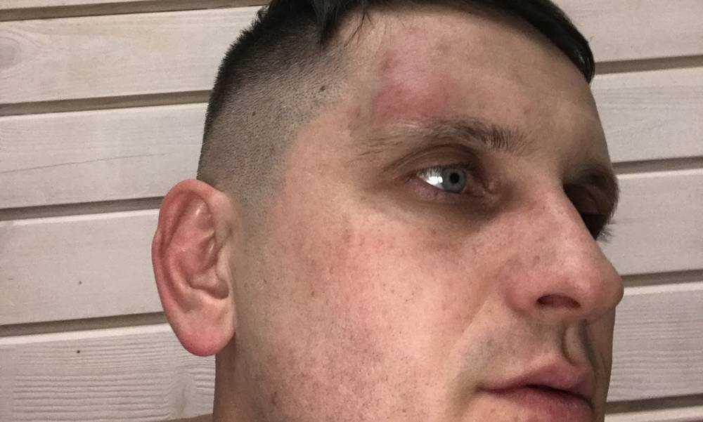 Брянцы призвали расследовать случай с обвиненным в избиении адвокатом