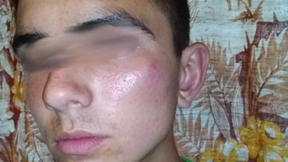 Вооруженный монтировкой брянский маршрутчик избил парня за шалость
