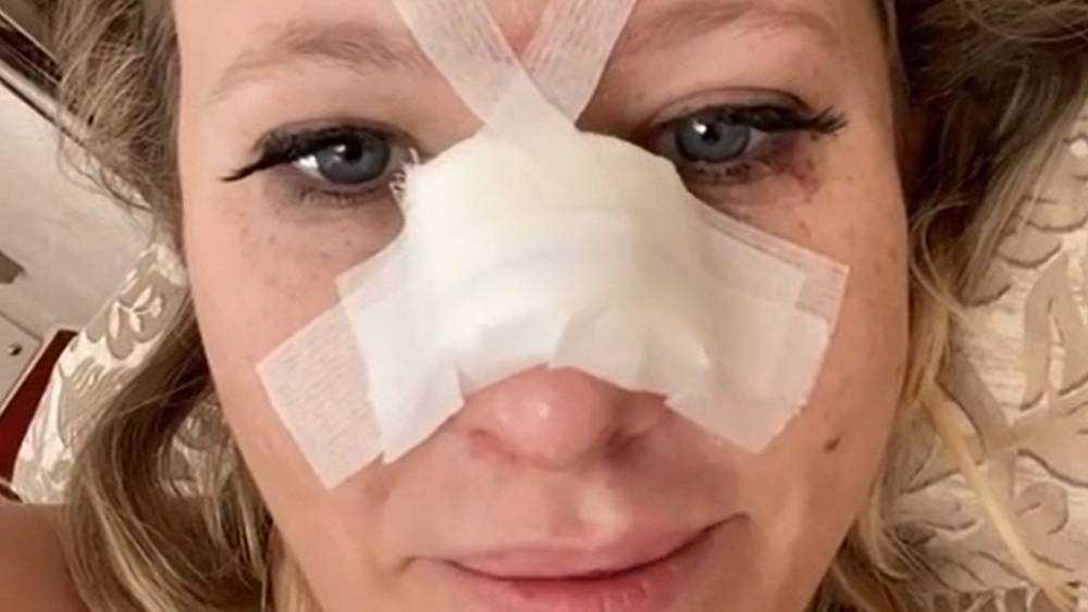 Дочь бывшего брянского сенатора сломала нос