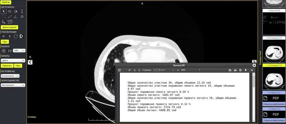 В Брянской больнице стали применять технологии искусственного интеллекта