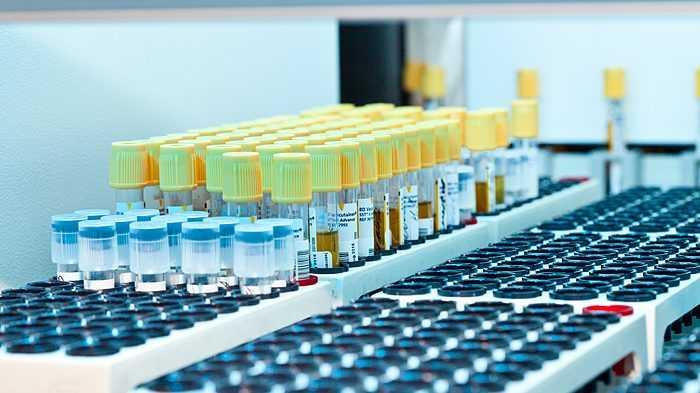Брянцам доступна специальная цена на биохимию крови