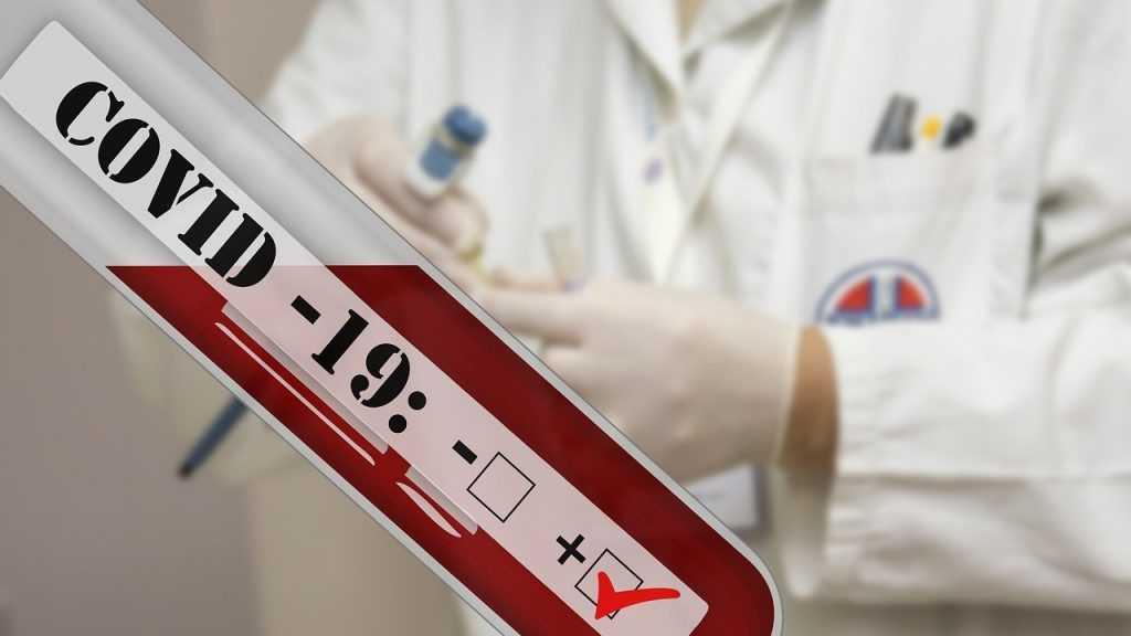 В Брянске за сутки коронавирус нашли еще у 53 человек