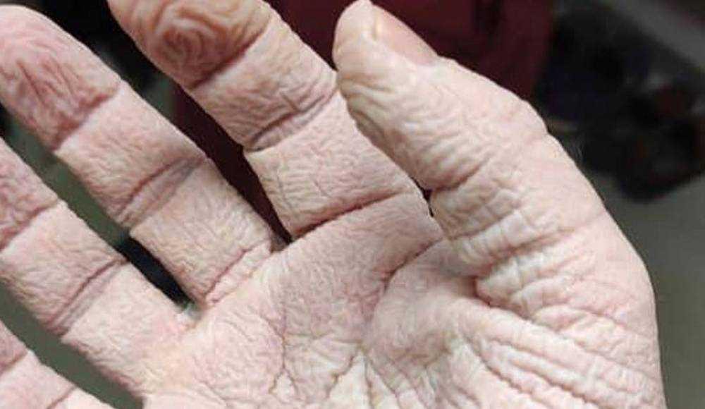 В соцсети опубликован снимок, заставляющий задуматься об ужасах коронавируса